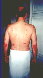 Kandesn Sunrider Psoriasis Skin Healthy with Natural products