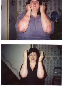 Psoriasis 2004